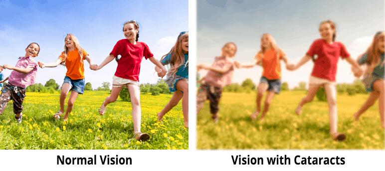 Cataract vision - North GA Eye