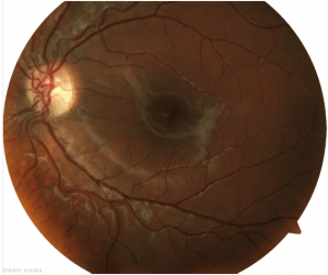 Picture of retina with retinopathy